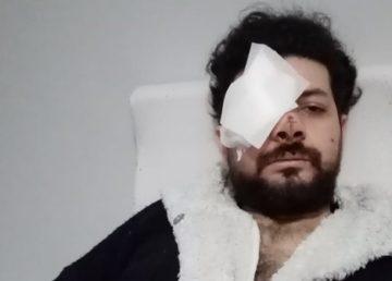 Şişli'de iki grup arasında çıkan silahlı kavgada maganda kurşunuyla gözünü kaybeden şarkıcı Şahan Dinç dehşet anlarını anlattı.